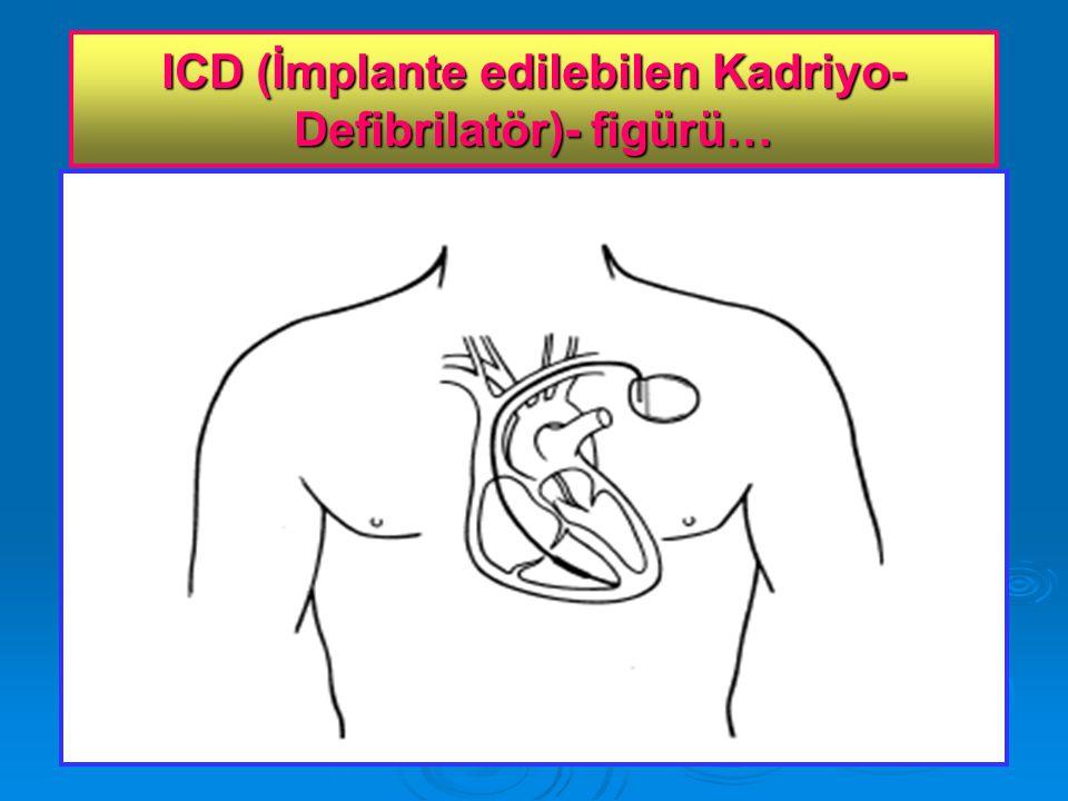 ICD (İmplante edilebilen Kadriyo- Defibrilatör)- figürü…
