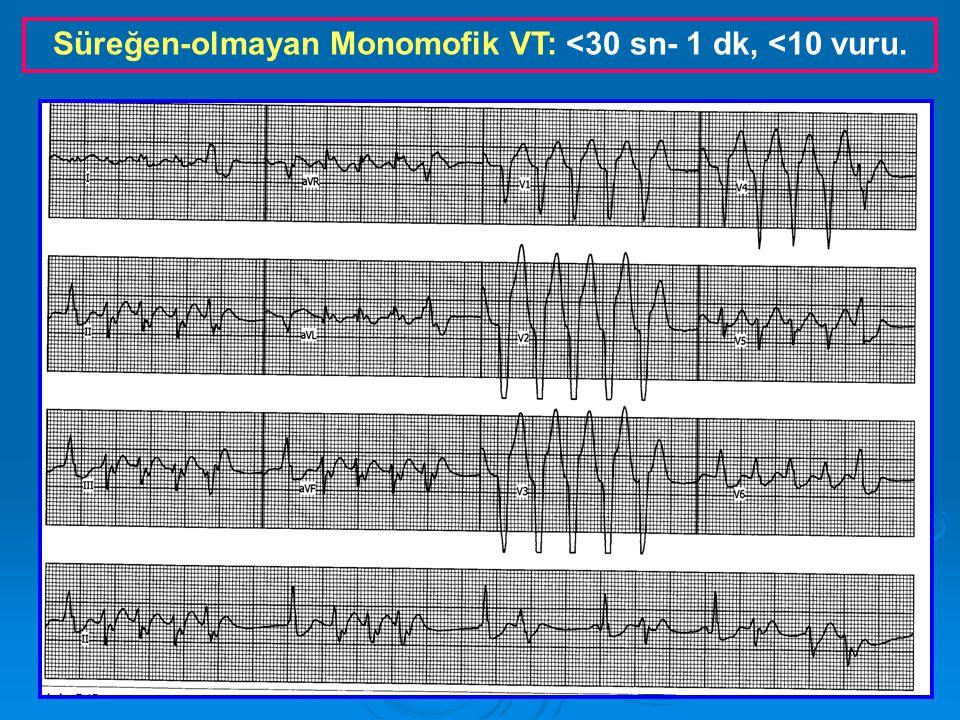 Süreğen Monomorfik VT: >30 sn- 1 dk, >10 vuru.