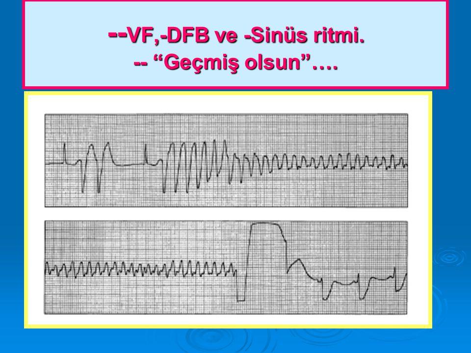 -- VF,-DFB ve -Sinüs ritmi. -- Geçmiş olsun ….