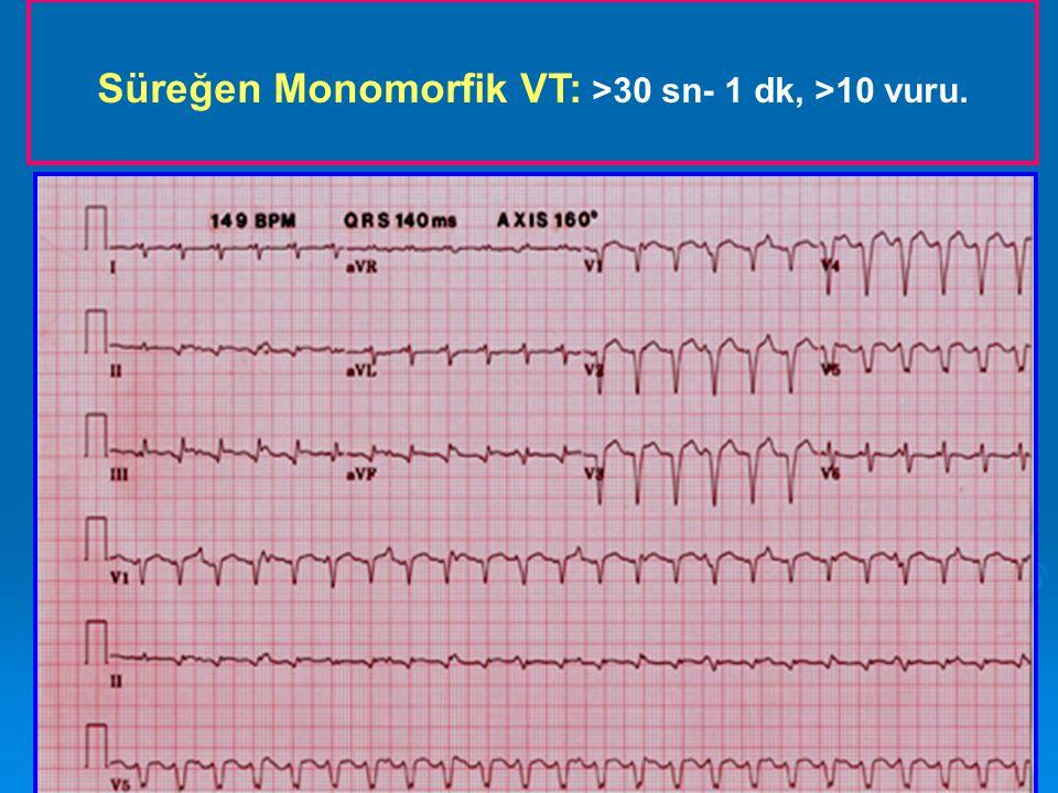 KARDİYAK ARREST PREKORDİYAL YUMRUK BLS Algoritm Defibrilatör'ün Monitoruna bağla.
