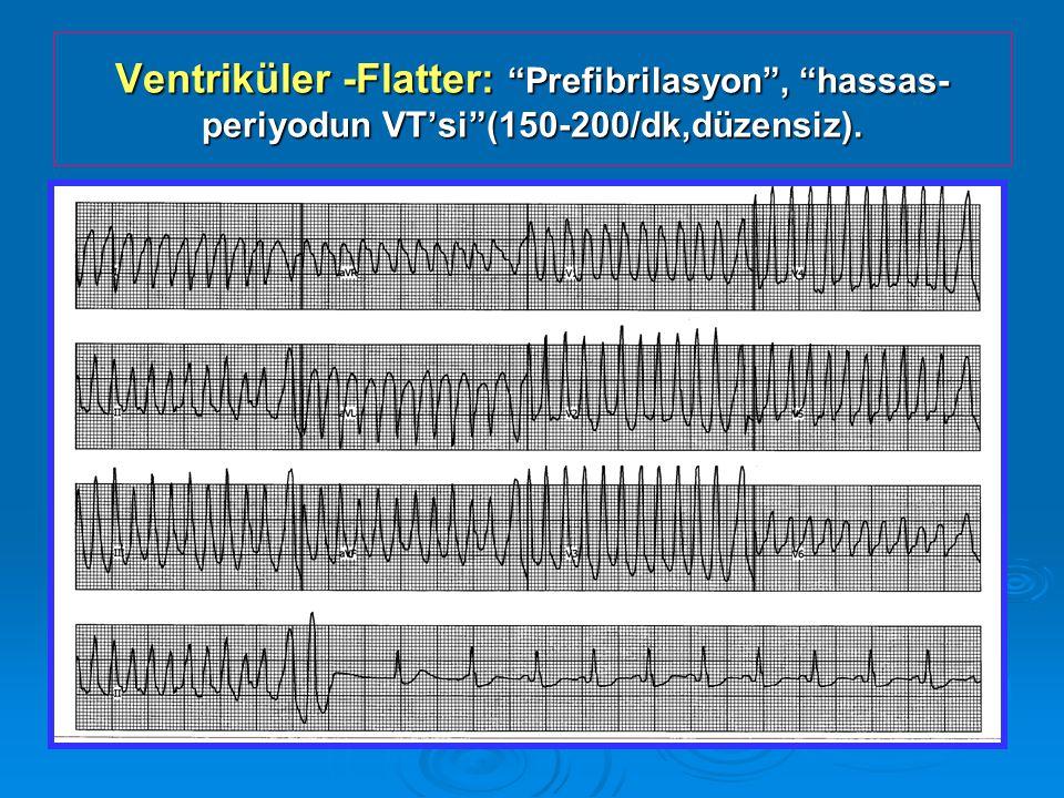 Ventriküler -Flatter: Prefibrilasyon , hassas- periyodun VT'si (150-200/dk,düzensiz).