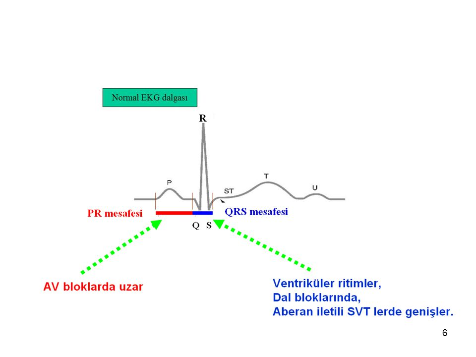 7 Kalp atım Hızının Hesaplanması Düzenli ritimde; KAH= 300 / (2 R dalgası arasındaki büyük kare sayısı) Düzensiz Ritimde; KAH= 15 tane büyük kare içindeki QRS sayısı X 20