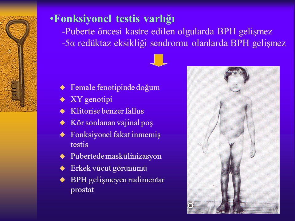 Fonksiyonel testis varlığı -Puberte öncesi kastre edilen olgularda BPH gelişmez -5α redüktaz eksikliği sendromu olanlarda BPH gelişmez  Female fenoti