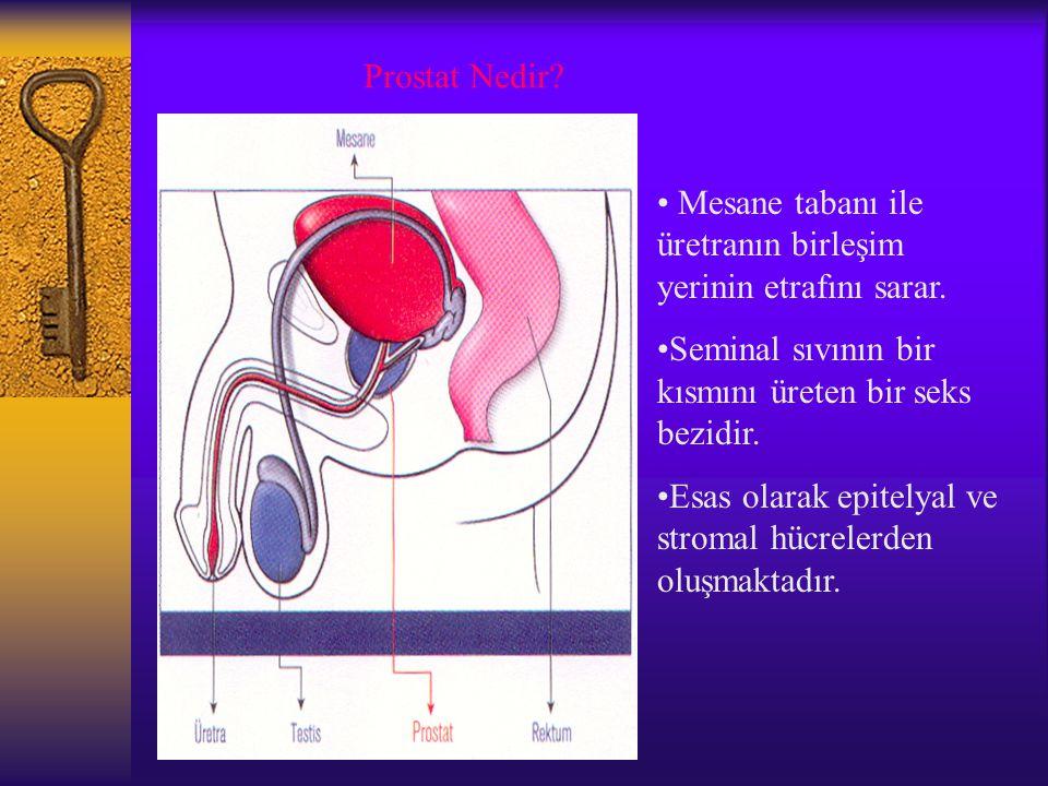 Prostat Nedir? Mesane tabanı ile üretranın birleşim yerinin etrafını sarar. Seminal sıvının bir kısmını üreten bir seks bezidir. Esas olarak epitelyal