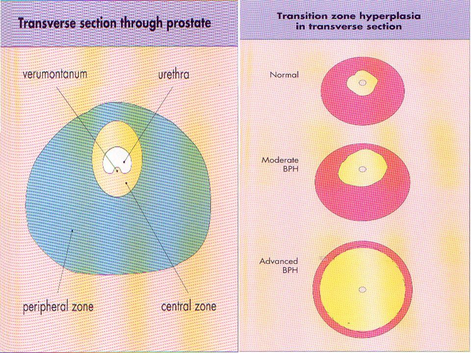 Prostatın damar ve sinirleri  Arter: İnternal pudental, İnferior vezikal, Orta rektal  Ven: Venleri derin dorsal ven ile birleşerek internal iliak venlere drene olur.
