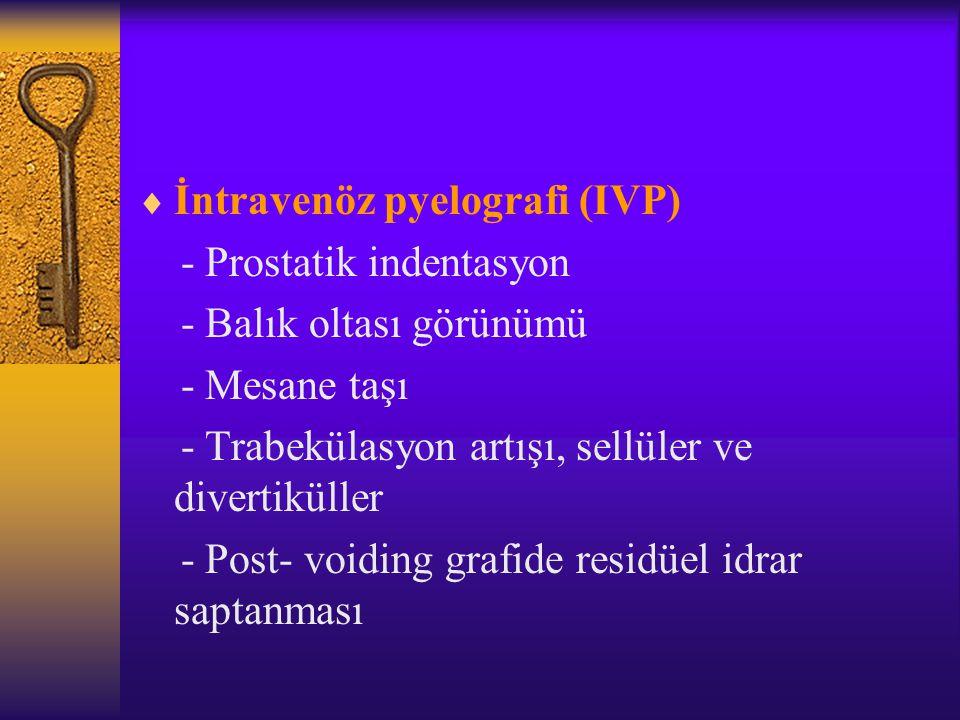  İntravenöz pyelografi (IVP) - Prostatik indentasyon - Balık oltası görünümü - Mesane taşı - Trabekülasyon artışı, sellüler ve divertiküller - Post-