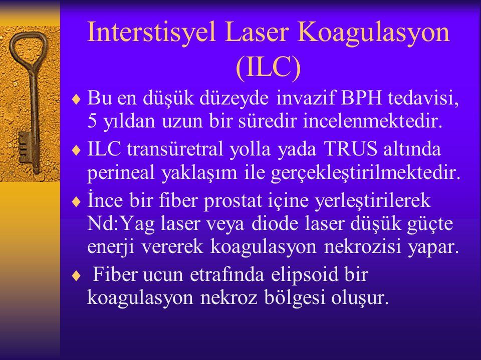 Interstisyel Laser Koagulasyon (ILC)  Bu en düşük düzeyde invazif BPH tedavisi, 5 yıldan uzun bir süredir incelenmektedir.  ILC transüretral yolla y