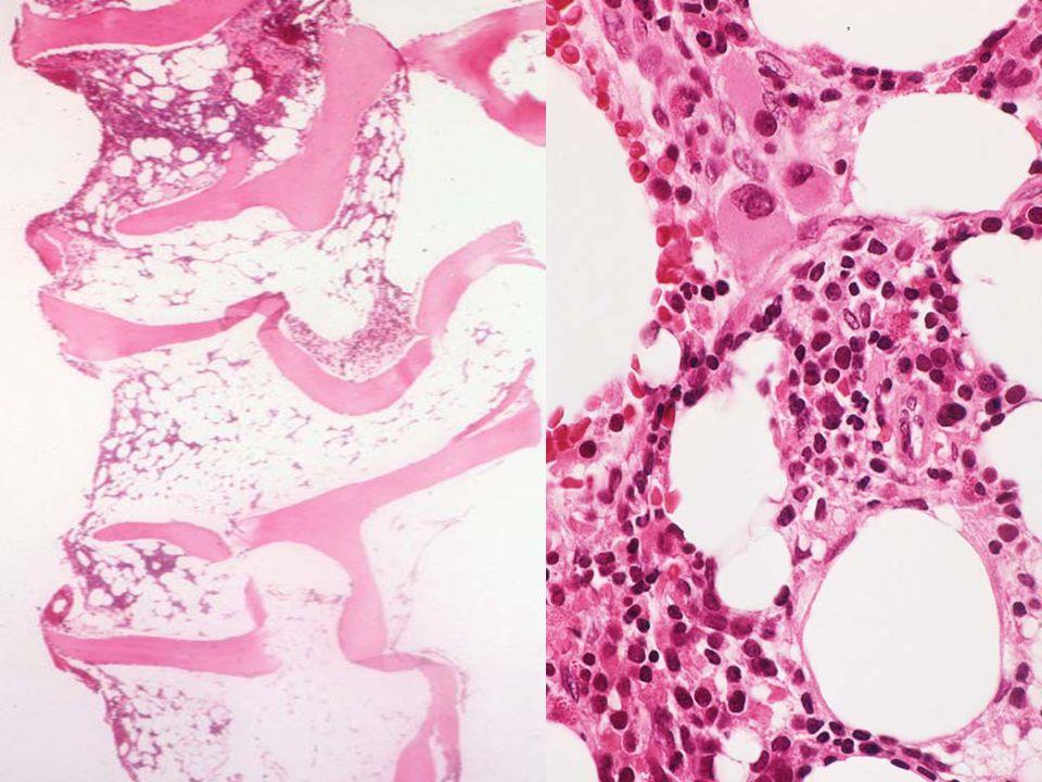 Tedaviye Bağlı Olarak Gelişen MDS En sık meme Ca, small cell Ca, testis Ca, over Ca'nın tedavisi sonrasında görülmektedir.