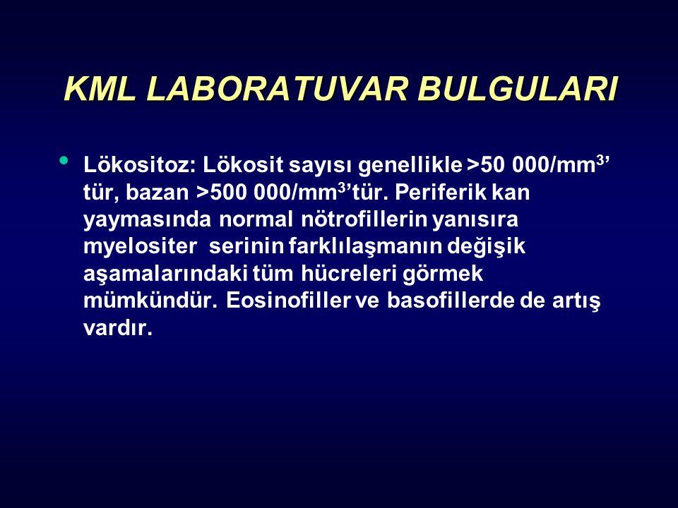KML LABORATUVAR BULGULARI Lökositoz: Lökosit sayısı genellikle >50 000/mm 3 ' tür, bazan >500 000/mm 3 'tür.