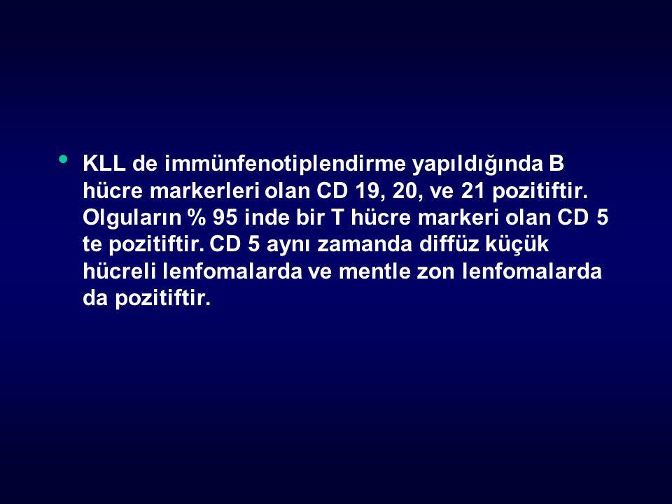 KLL de immünfenotiplendirme yapıldığında B hücre markerleri olan CD 19, 20, ve 21 pozitiftir.