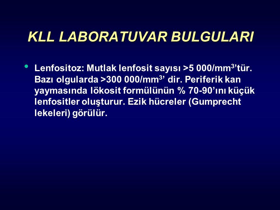 KLL LABORATUVAR BULGULARI Lenfositoz: Mutlak lenfosit sayısı >5 000/mm 3 'tür.