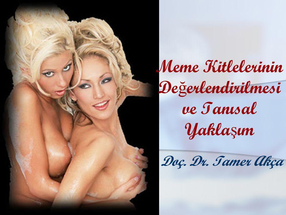 Doç. Dr. Tamer Akça Meme Kitlelerinin De ğ erlendirilmesi ve Tanısal Yakla ş ım