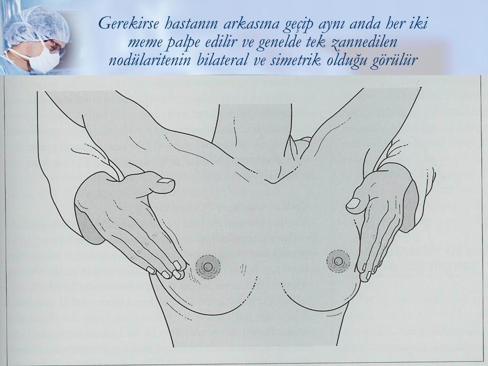 Meme Kitlelerine Yaklaşım16 Gerekirse hastanın arkasına geçip aynı anda her iki meme palpe edilir ve genelde tek zannedilen nodülaritenin bilateral ve simetrik olduğu görülür
