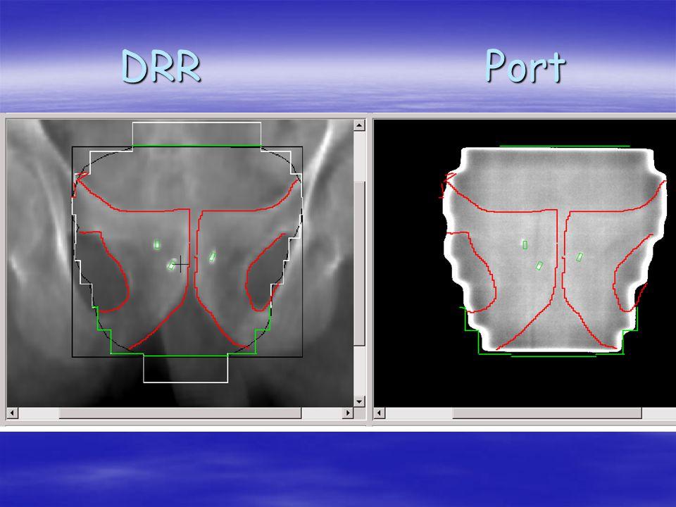 DRR Port DRR Port