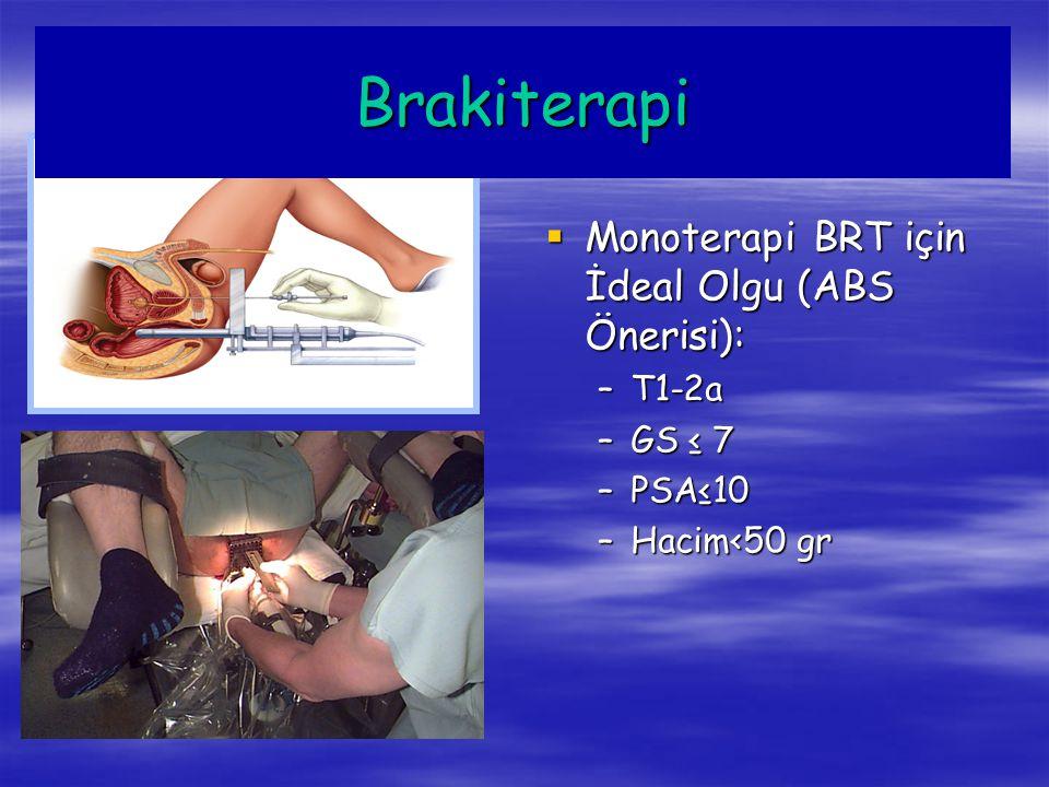 Brakiterapi  Volüm>60 cc –Retansiyon riski –Pubik-ark interferansı  Obstrüktif semptomlar –IPSS ↑  TUR hikayesi University of Seattle