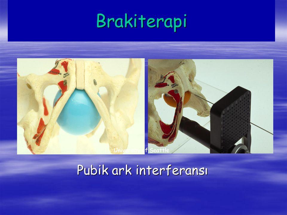 5 yıllık Biokimyasal DFS 3D-CRT IMRT IMRT Hasta Grubu Low Dose High Dose Radyoaktif seed Implant Prostatektomi Favorabl % 80 % 85 % 91 % 88 Intermediate % 53 % 75 % 67 Kötü % 29 % 54 % 60 % 50 Kagan AR.