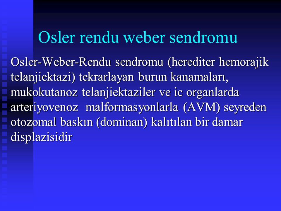 Osler rendu weber sendromu Osler-Weber-Rendu sendromu (herediter hemorajik telanjiektazi) tekrarlayan burun kanamaları, mukokutanoz telanjiektaziler v