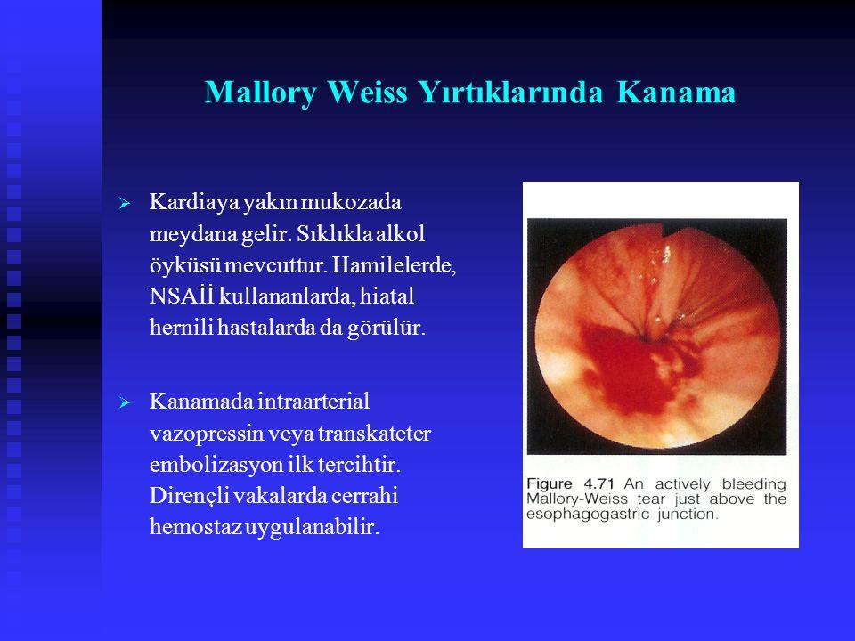 Mallory Weiss Yırtıklarında Kanama   Kardiaya yakın mukozada meydana gelir. Sıklıkla alkol öyküsü mevcuttur. Hamilelerde, NSAİİ kullananlarda, hiata