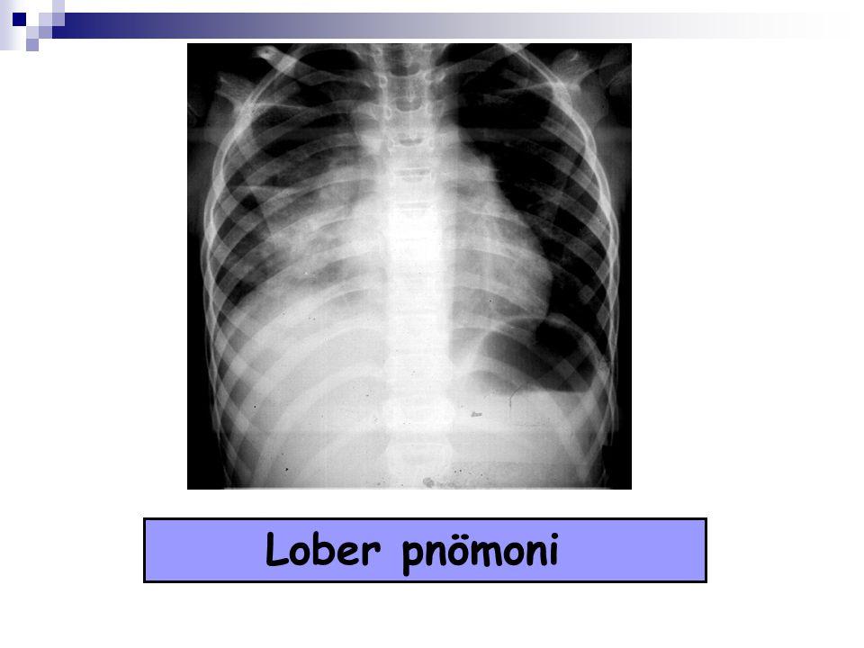 Altta yatan hastalığı olanlar (malnütrisyon, doğumsal kalp hastalıkları, kronik solunum sistemi hastalıkları, diyabet, immun yetmezlik...) Akciğer grafisinde birden fazla lobda tutulum, atelektazi, apse veya pnömotosel, plevral efüzyon varsa Yineleyen pnömoniler Sosyal endikasyon HASTANEYE YATIŞ KRİTERLERİ