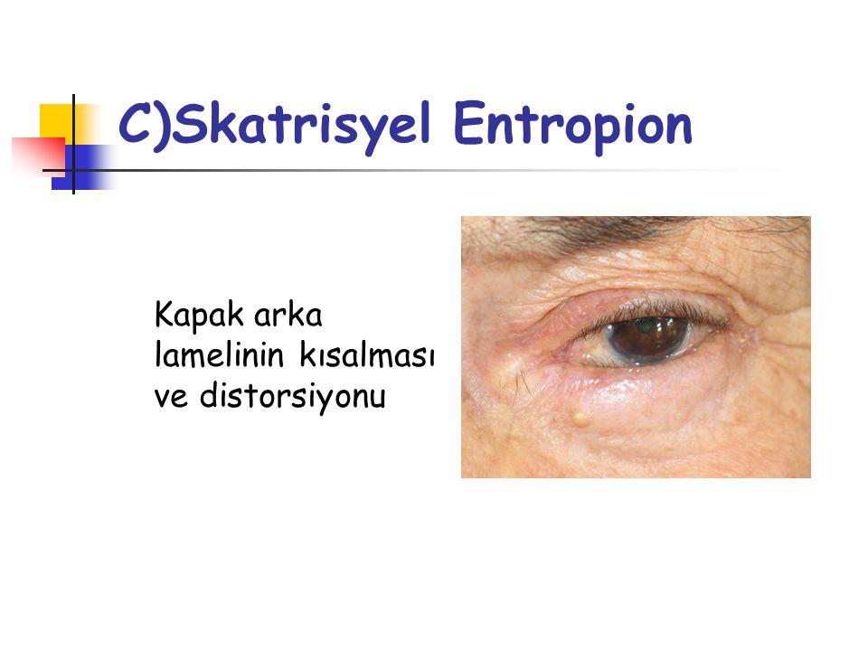 Skatrisyel Entropion Etiyoloji Enfeksiyonlar Trahom Kronik blefarokonjonktivit, meibomit Herpes Zoster Vernal konjonktivit Rosacea Otoimmün hastalıklar Eritema multiforme İlaç toksisitesi Benign müköz membran pemfigoid