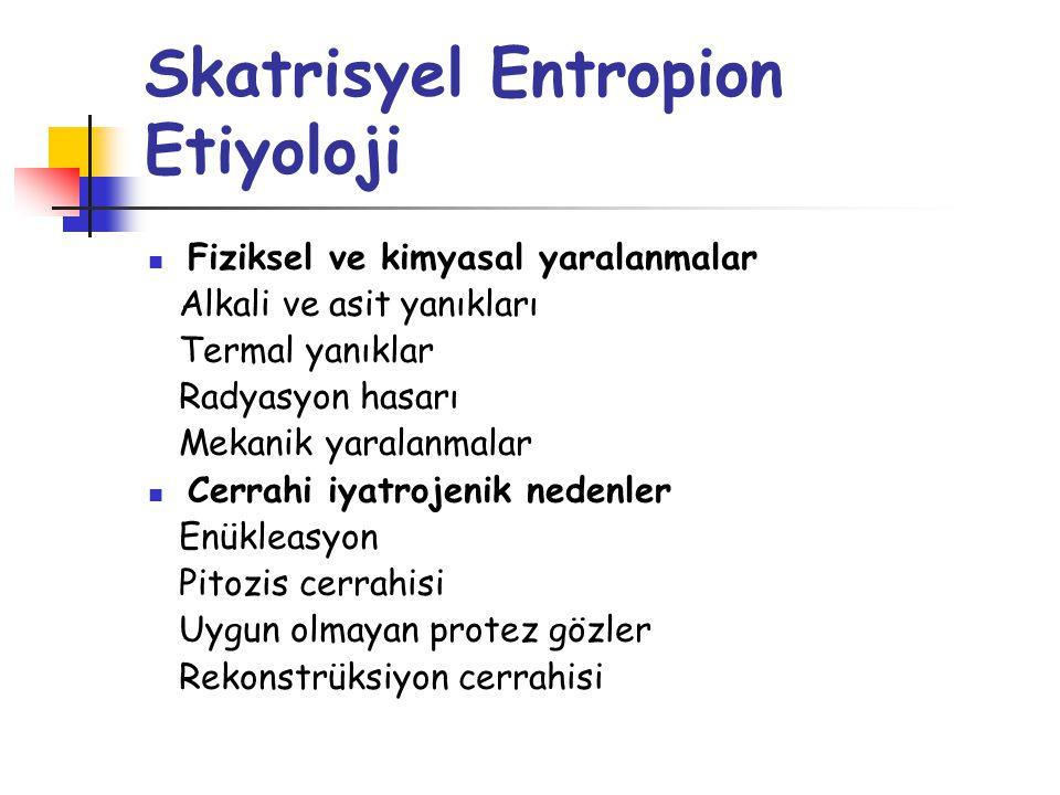 Skatrisyel Entropion Muayene Posterior lamel desteğinin değerlendirilmesi Tarsal plağın yüksekliği Skatrizan konjonktival hastalık varlığı