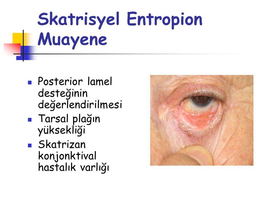 Skatrisyel Entropion Klinik Klinik olarak 3 gruba ayrılır Hafif skatrisyel entropion Sadece meibomian gland açıklıkları arkaya doğru yönlenmiş Tam olmayan epidermalizasyon Sadece yukarı bakışta glob-kirpik teması