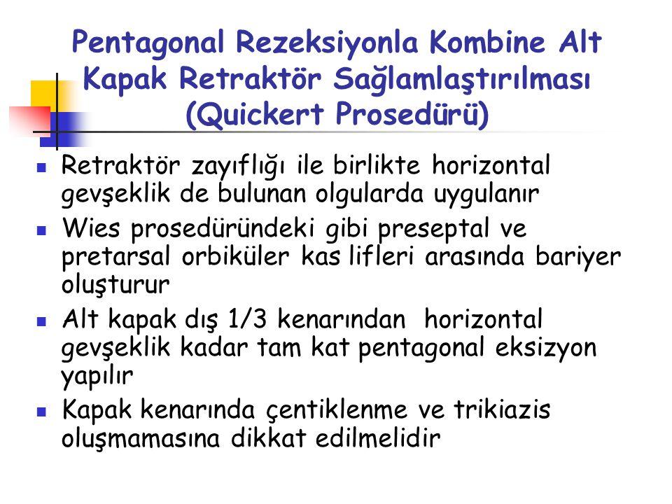 Quickert Prosedürü