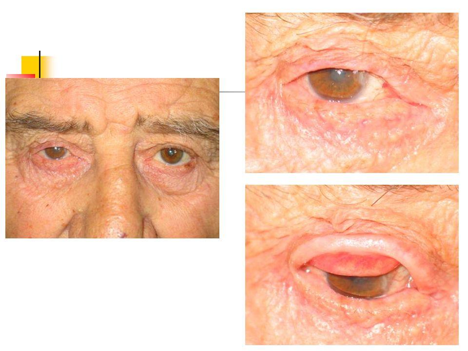 Cerrahi Tedavi Entropionun ciddiyeti Altta yatan patolojik hadise Tars kalınlığı Posterior lamelde keratinizasyonun mevcudiyeti Kapak retraksiyonu Lagoftalmus Protez varlığı cerrahi prosedürün belirlenmesinde önemlidir