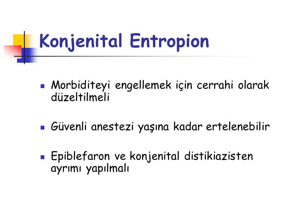 B) İnvolüsyonel Entropion En sık görülen tip İleri yaş Başlangıçta intermittan zamanla persistan Yabancı cisim hissi, epifora, fotofobi, konjonktivit, sekresyon