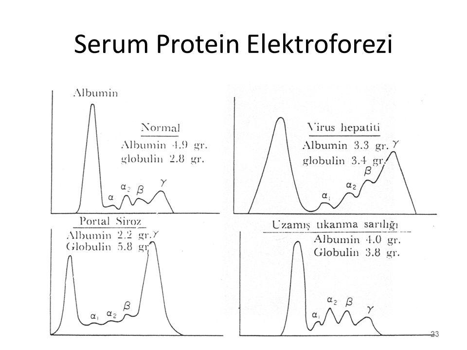Serum Protein Elektroforezi 23