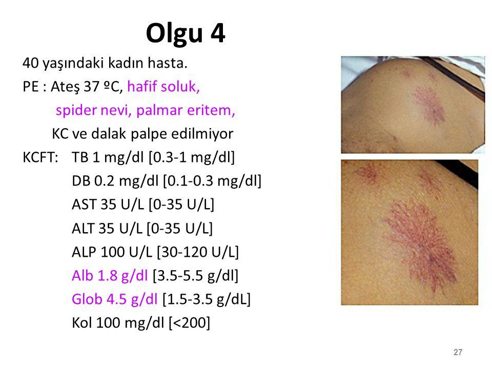 Olgu 4 40 yaşındaki kadın hasta. PE : Ateş 37 ºC, hafif soluk, spider nevi, palmar eritem, KC ve dalak palpe edilmiyor KCFT:TB 1 mg/dl [0.3-1 mg/dl] D