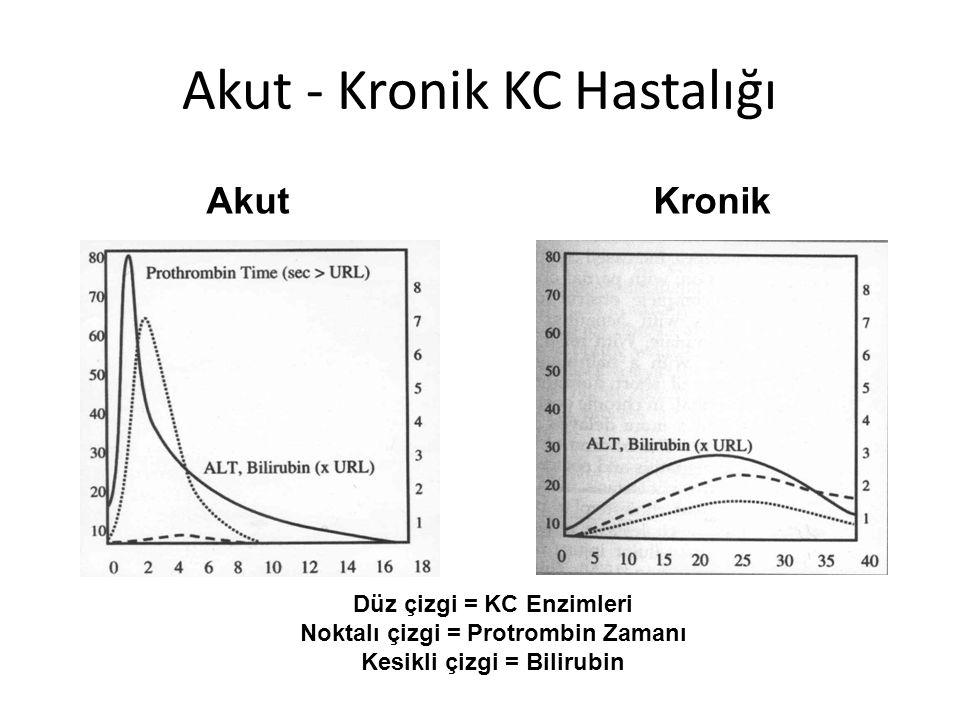 Akut - Kronik KC Hastalığı Düz çizgi = KC Enzimleri Noktalı çizgi = Protrombin Zamanı Kesikli çizgi = Bilirubin AkutKronik