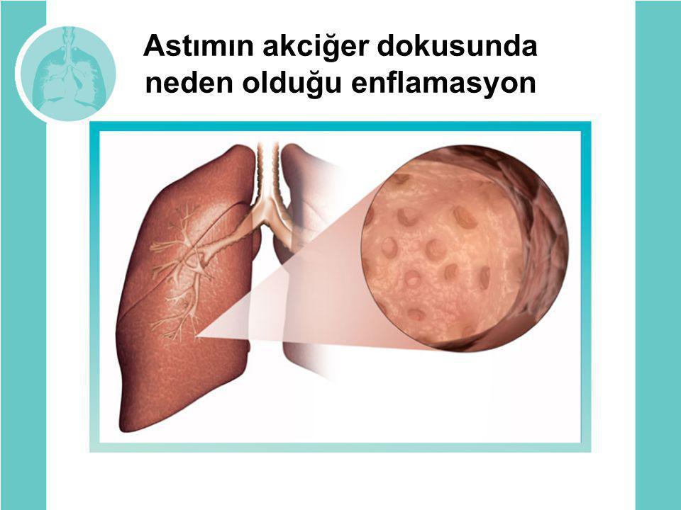 Astımın akciğer dokusunda neden olduğu enflamasyon
