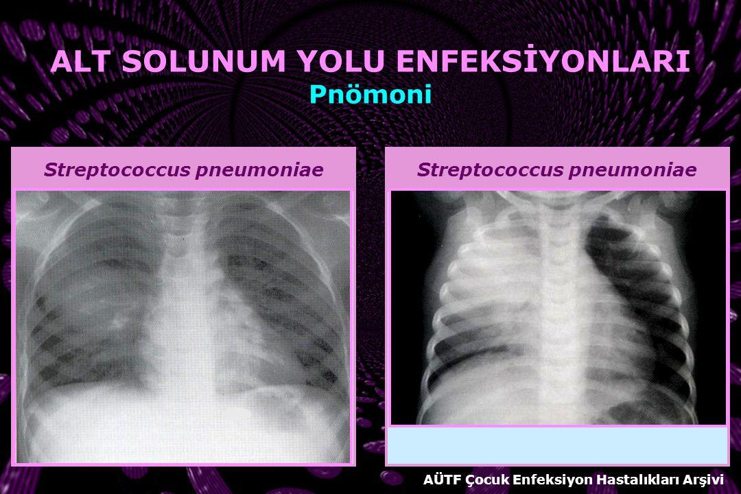 AKCİĞER GRAFİSİ BAKTERİYEL PNÖMONİ Lober veya segmental pnömoni Yuvarlak pnömoni Bronkopnömoni Akciğer apsesi Pnömatosel Plevral efüzyon VİRAL PNÖMONİ