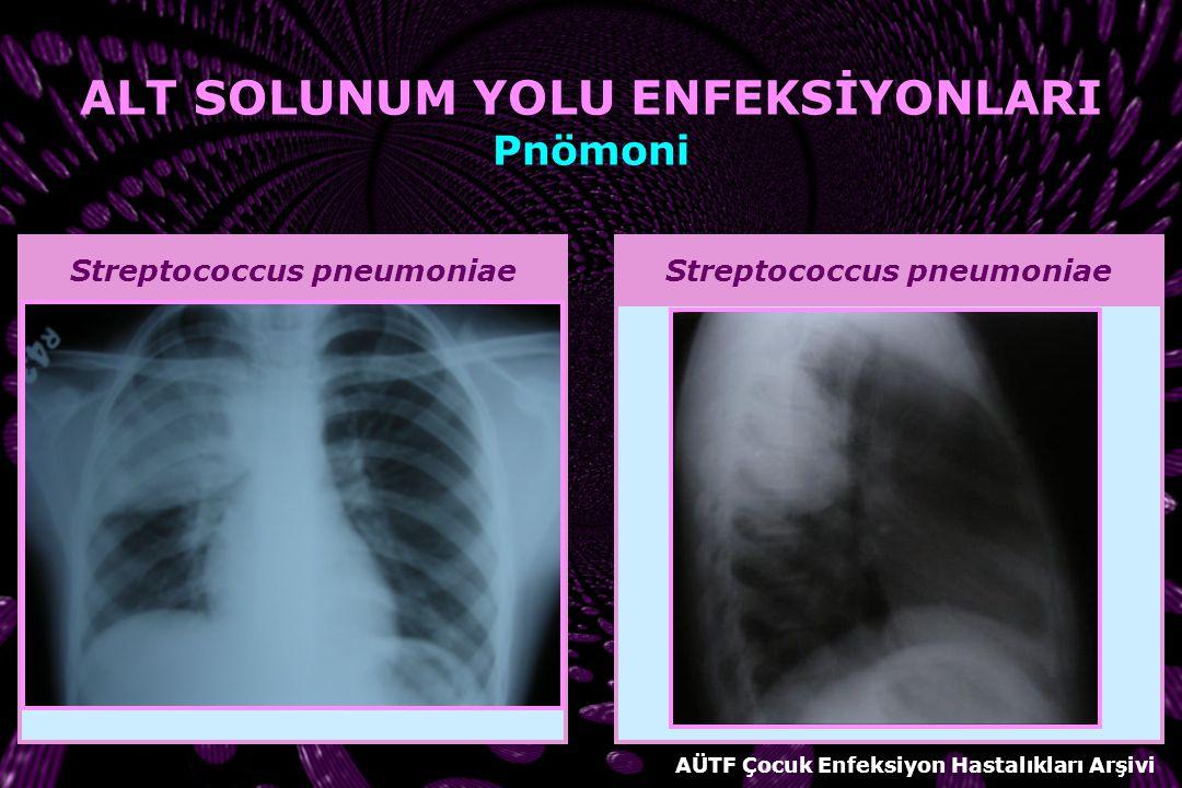 Streptococcus pneumoniae AÜTF Çocuk Enfeksiyon Hastalıkları Arşivi ALT SOLUNUM YOLU ENFEKSİYONLARI Pnömoni