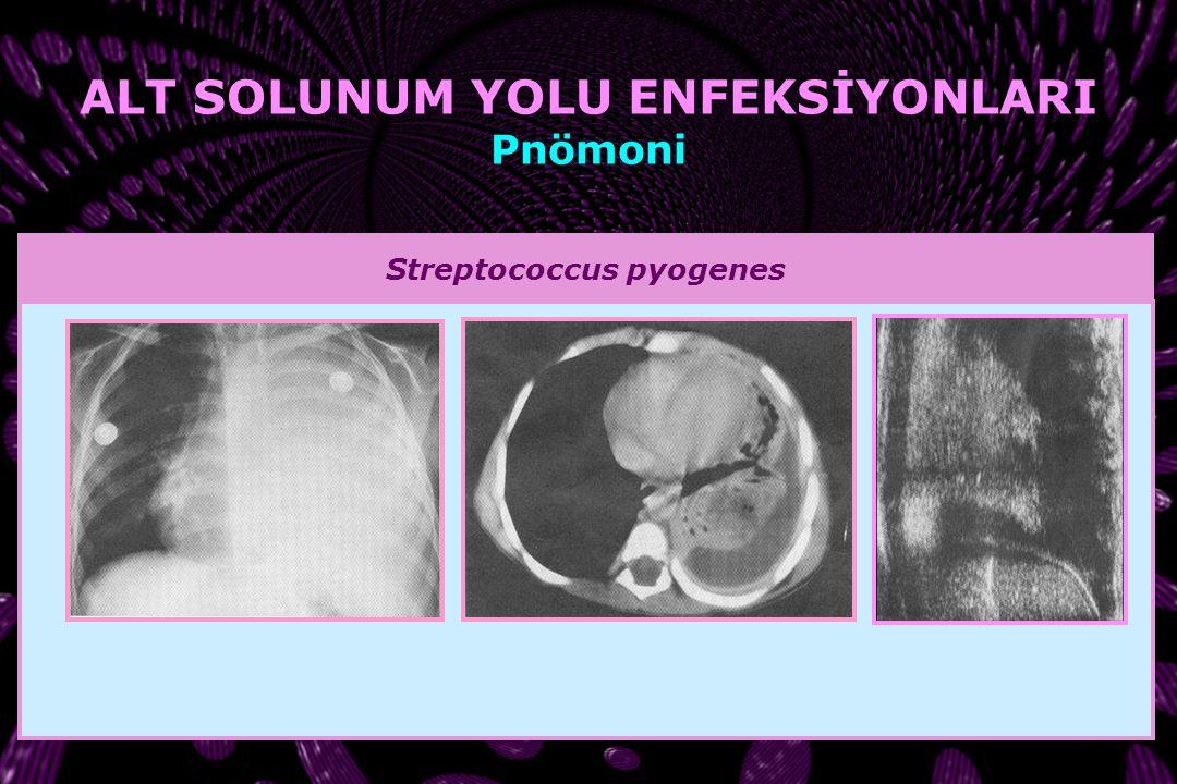 Streptococcus pneumoniae ALT SOLUNUM YOLU ENFEKSİYONLARI Pnömoni