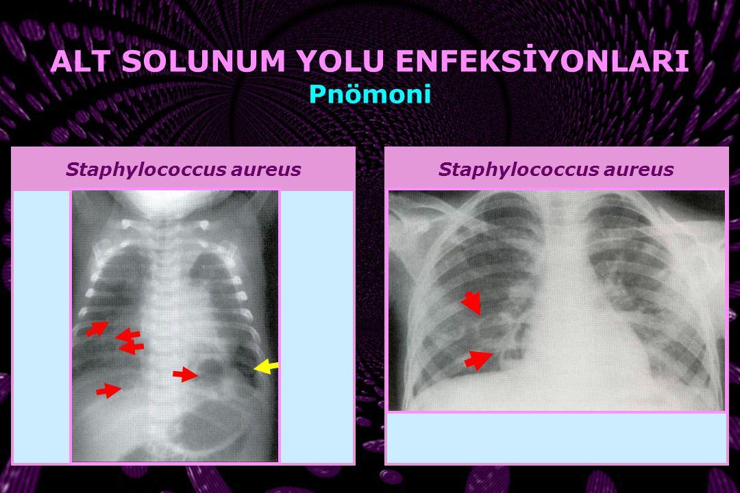 Streptococcus pyogenes ALT SOLUNUM YOLU ENFEKSİYONLARI Pnömoni