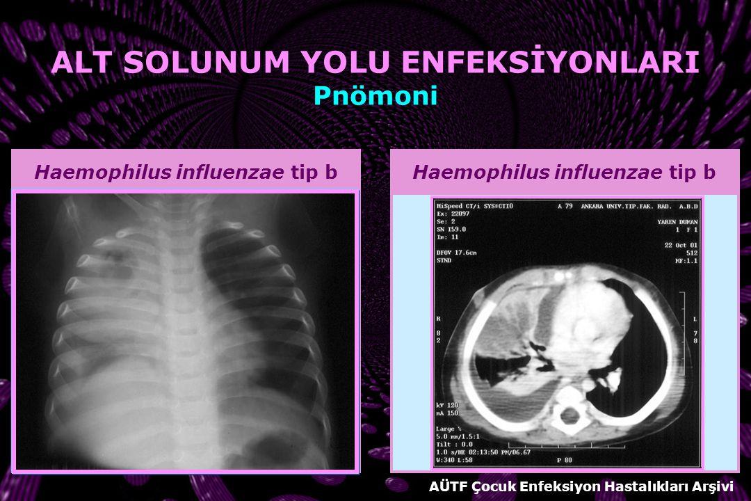 Staphylococcus aureus ALT SOLUNUM YOLU ENFEKSİYONLARI Pnömoni