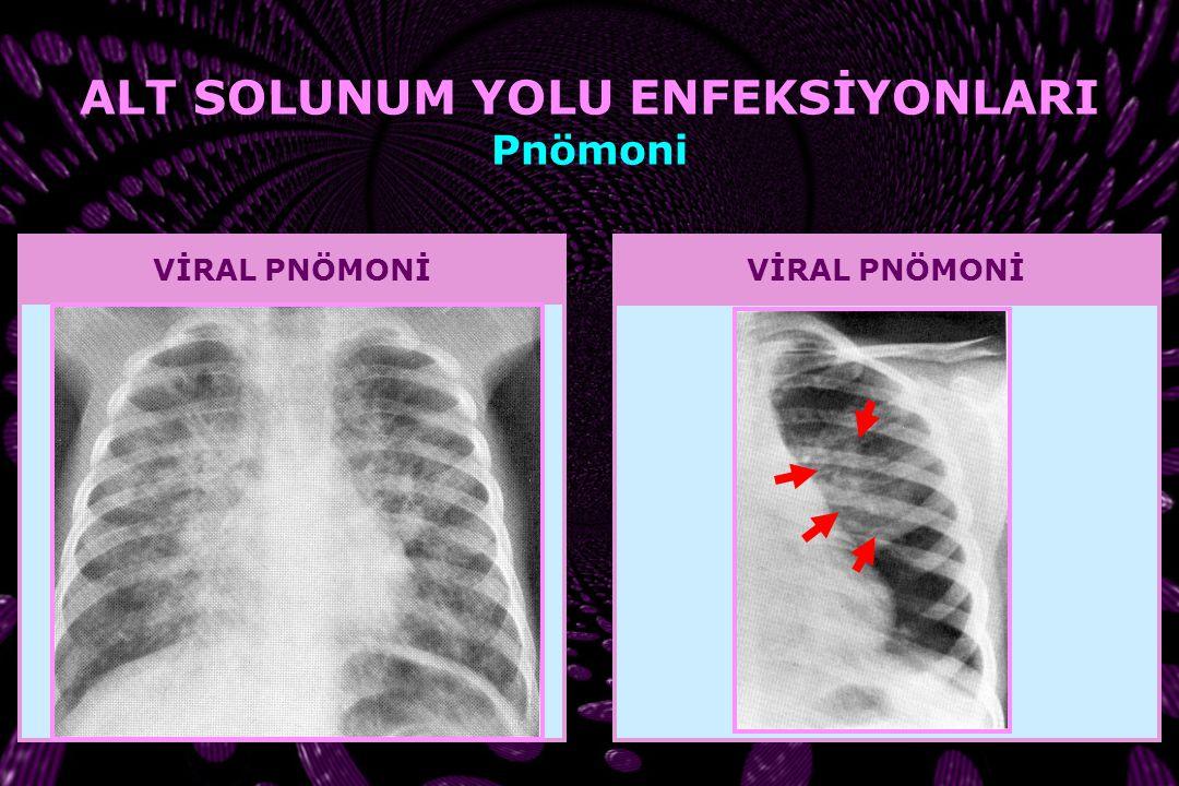Haemophilus influenzae tip b AÜTF Çocuk Enfeksiyon Hastalıkları Arşivi ALT SOLUNUM YOLU ENFEKSİYONLARI Pnömoni