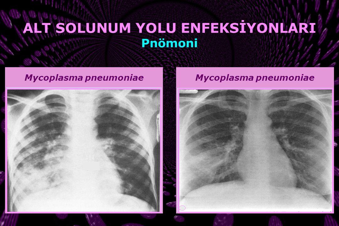 RSVİnfluenza ALT SOLUNUM YOLU ENFEKSİYONLARI Pnömoni