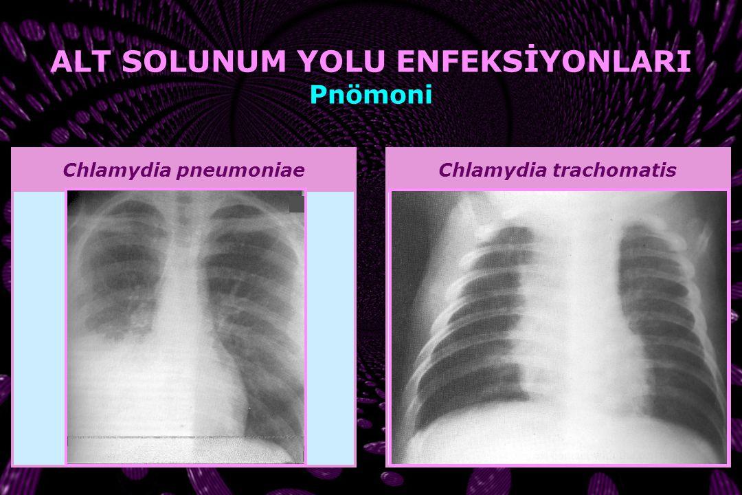Mycoplasma pneumoniae ALT SOLUNUM YOLU ENFEKSİYONLARI Pnömoni