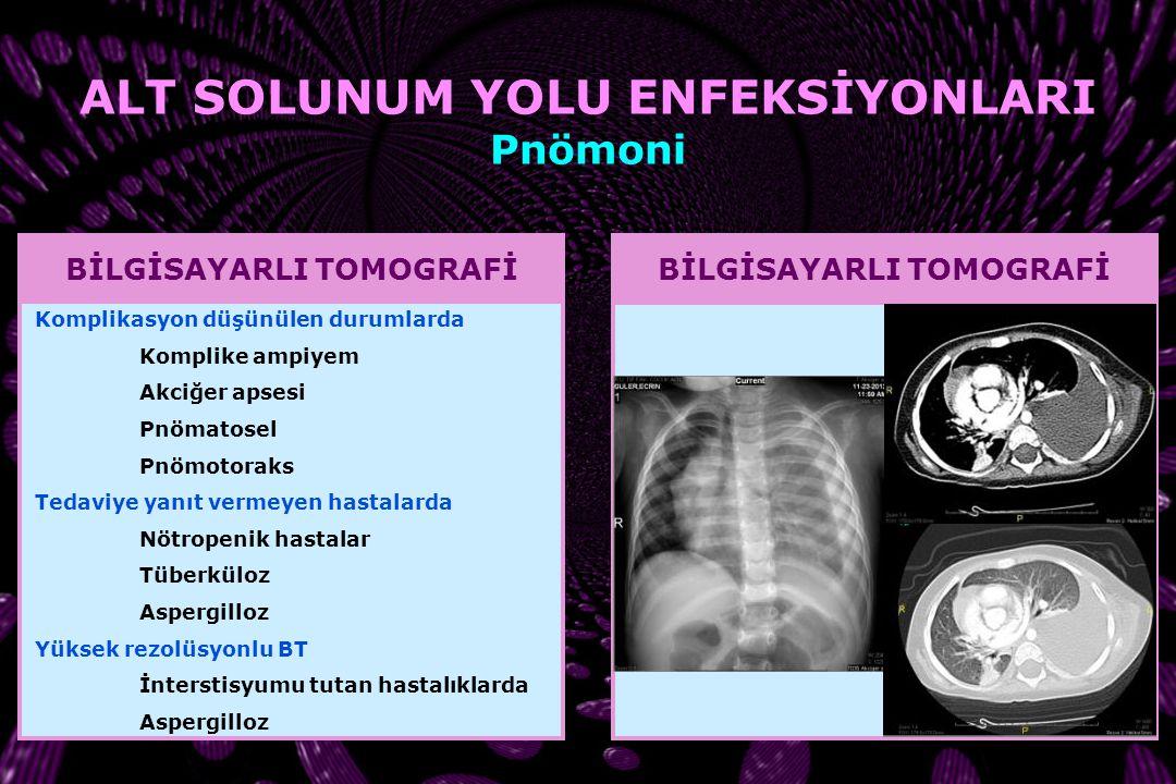 Chlamydia pneumoniae RADYOGRAFİ KONTROLÜ Radyolojik düzelme klinik iyileşmenin ardından geldiğinden iyileşmenin izlenmesinde faydası yoktur Tedaviye y