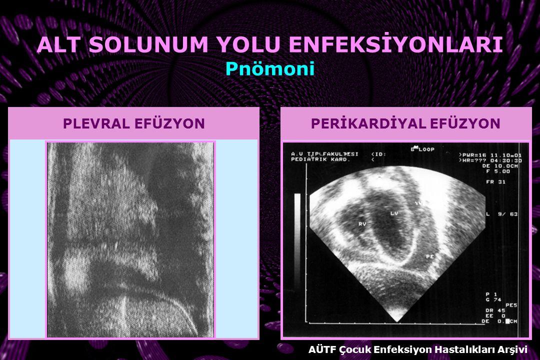 Chlamydia pneumoniae BİLGİSAYARLI TOMOGRAFİ Komplikasyon düşünülen durumlarda Komplike ampiyem Akciğer apsesi Pnömatosel Pnömotoraks Tedaviye yanıt ve