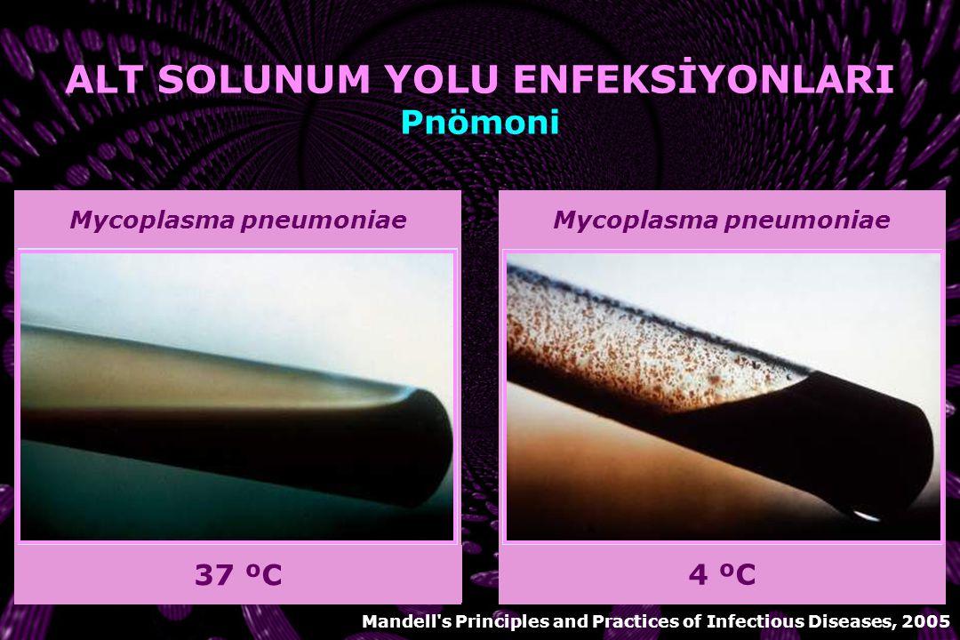 Chlamydia pneumoniae VİRÜSLER ve ATİPİKLER 1.Kültür Gelişmiş laboratuvarlarda yapılabilir Nazofarengeal aspirat veya boğaz sürüntüsü 2.Nükleik asid sa