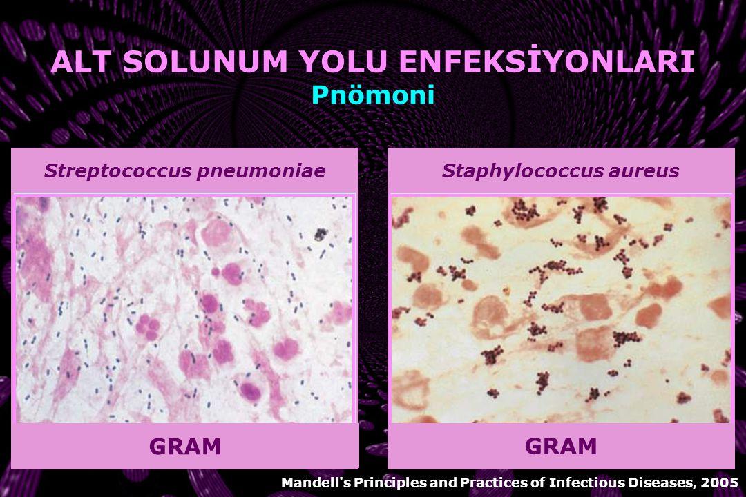 Chlamydia pneumoniae BAKTERİYEL PNÖMONİ  Kan kültürü  Balgam Gram boyama ve kültürü  Nazofarenks kültürü  Trakeostomi, endotrakeal, nazotrakeal tü