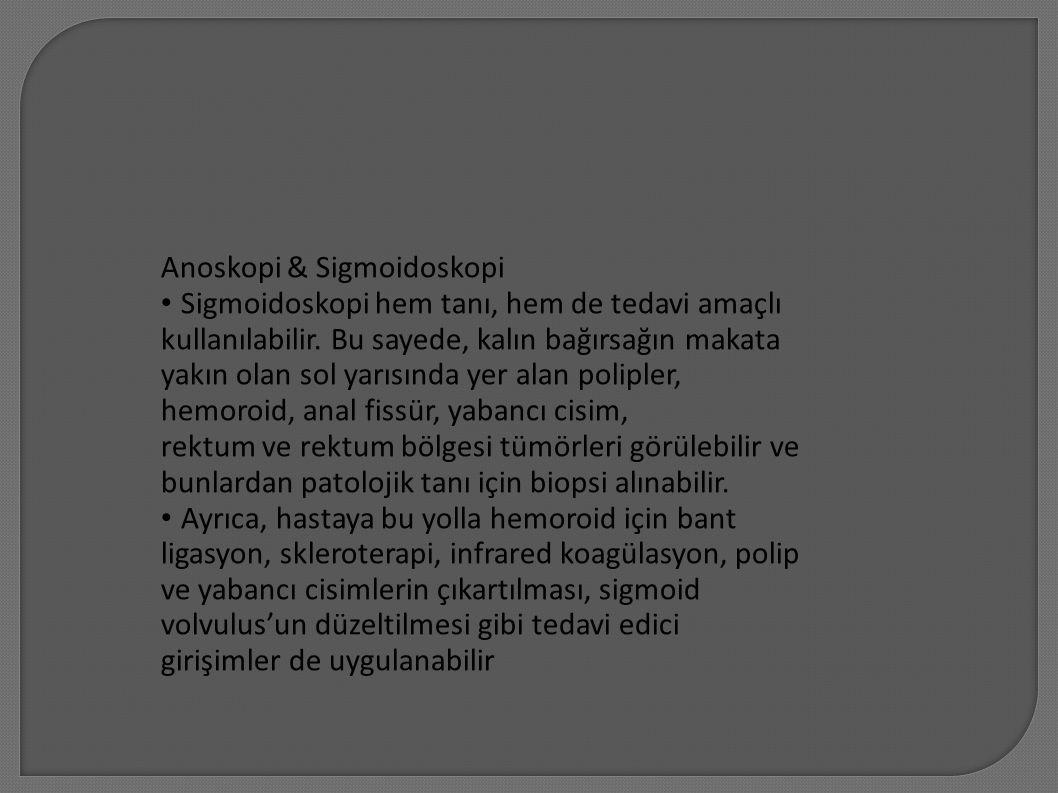 Anoskopi & Sigmoidoskopi Sigmoidoskopi hem tanı, hem de tedavi amaçlı kullanılabilir. Bu sayede, kalın bağırsağın makata yakın olan sol yarısında yer