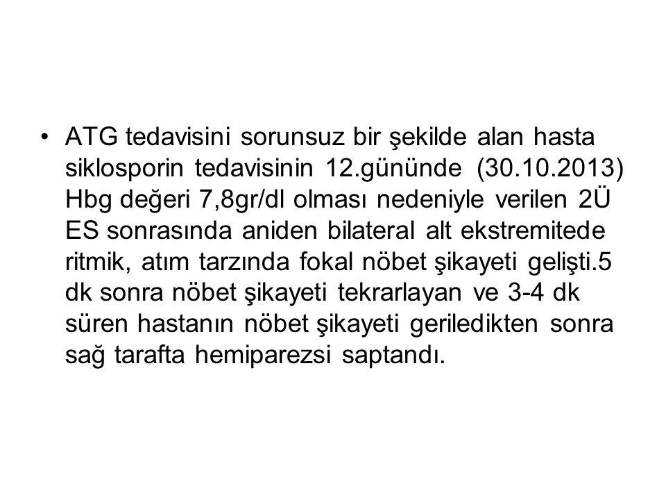 ATG tedavisini sorunsuz bir şekilde alan hasta siklosporin tedavisinin 12.gününde (30.10.2013) Hbg değeri 7,8gr/dl olması nedeniyle verilen 2Ü ES sonr