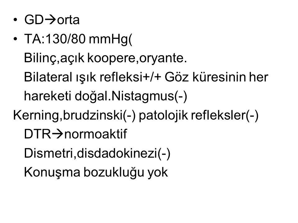GD  orta TA:130/80 mmHg( Bilinç,açık koopere,oryante. Bilateral ışık refleksi+/+ Göz küresinin her hareketi doğal.Nistagmus(-) Kerning,brudzinski(-)
