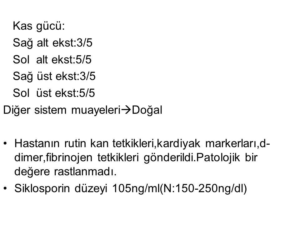 Kas gücü: Sağ alt ekst:3/5 Sol alt ekst:5/5 Sağ üst ekst:3/5 Sol üst ekst:5/5 Diğer sistem muayeleri  Doğal Hastanın rutin kan tetkikleri,kardiyak ma