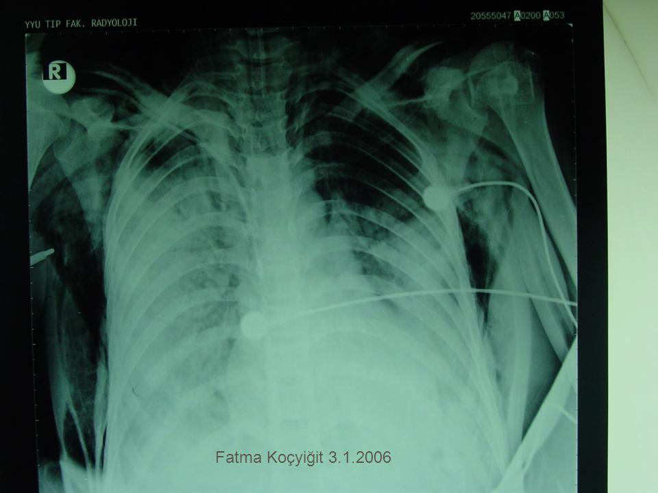 Fatma Koçyiğit 3.1.2006